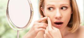 Gesichtsmasken helfen bei Akne