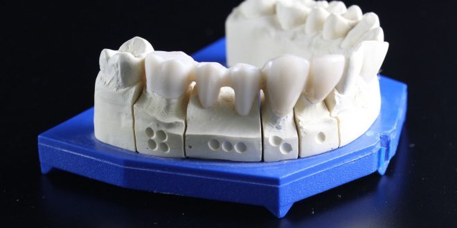 Zahnersatz: Diese Möglichkeiten gibt es