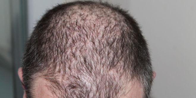 Haartransplantation: Das sollten Sie beachten